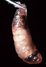 サックブルード病により有蓋蜂児で死亡した個体。暗色に変化した状態。写真提供:アメリカ農務省